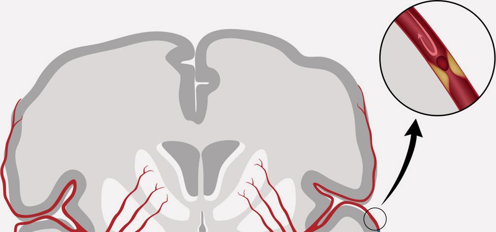 Pacienti pri cievnej mozgovej príhode volajú pomoc neskoro, majú strach z koronavirusu